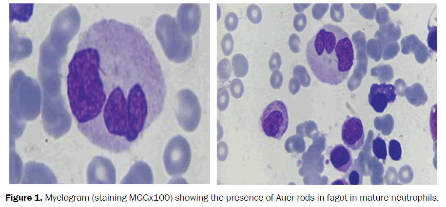 clinical-and-medical-case-studies-mature-neutrophils