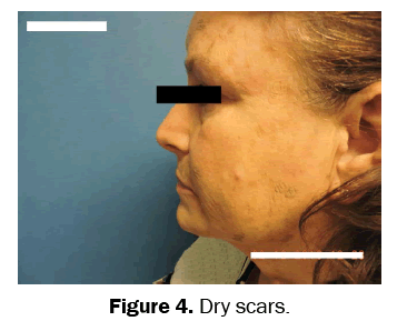 clinical-medical-Dry-scars