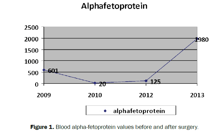 clinical-medical-alpha-fetoprotein