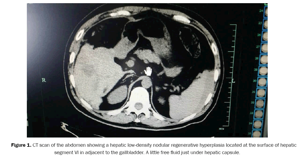clinical-medical-hepatic