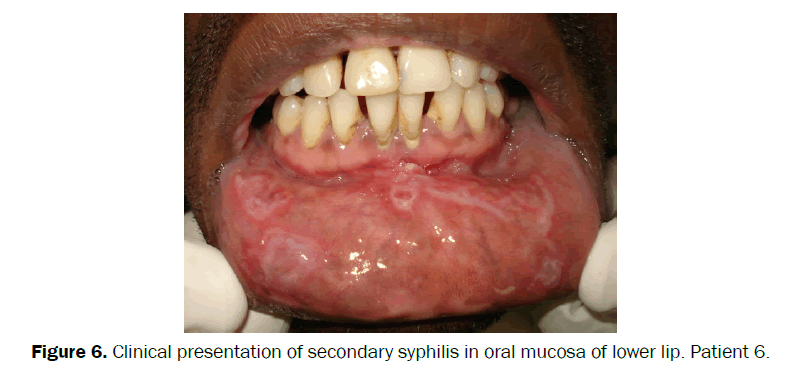 clinical-medical-oral-mucosa