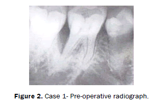 dental-sciences-Case-Pre-operative-radiograph