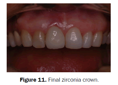 dental-sciences-Final-zirconia-crown