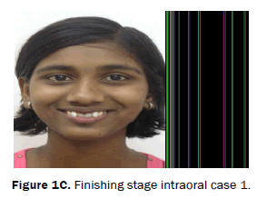 dental-sciences-Finishing-stage-intraoral-case