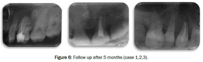 dental-sciences-Follow-after-months