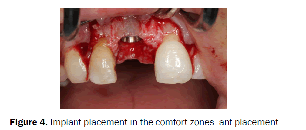 dental-sciences-Implant-placement-comfort-zones