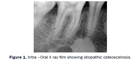 dental-sciences-Panoramic-radiograph-idiopathic-osteoscelrosis
