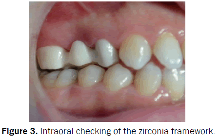 dental-sciences-Intraoral