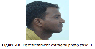 dental-sciences-Post-treatment-extraoral-photo