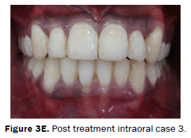 dental-sciences-Post-treatment-intraoral-case