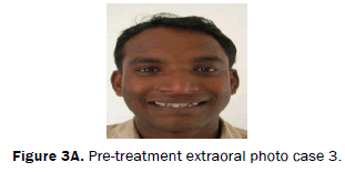 dental-sciences-Pre-treatment-extraoral-photo