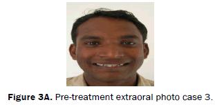 dental-sciences-Pre-treatment-extraoral-photo