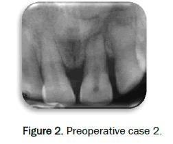 dental-sciences-Preoperative-case-2