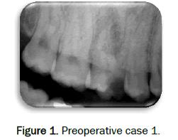 dental-sciences-Preoperative-case