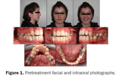 dental-sciences-Pretreatment