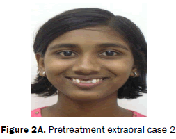 dental-sciences-Pretreatment-extraoral-case