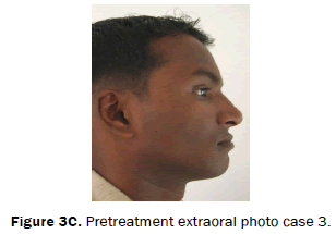 dental-sciences-Pretreatment-extraoral-photo