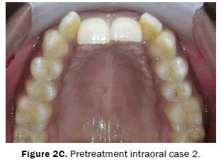 dental-sciences-Pretreatment-intraoral-case