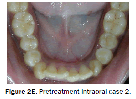 dental-sciences-Pretreatment-intraoral-case