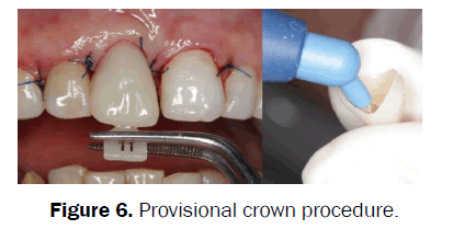 dental-sciences-Provisional-crown-procedure