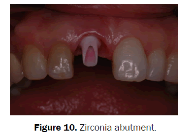dental-sciences-Zirconia-abutment