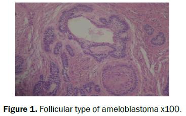dental-sciences-ameloblastoma