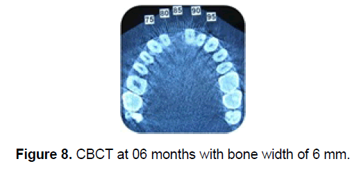 dental-sciences-bone-width