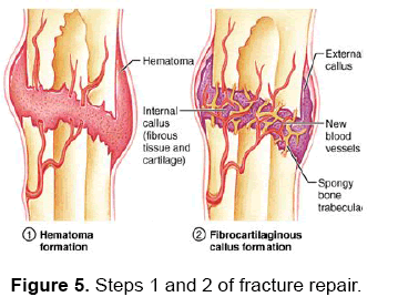 dental-sciences-fracture