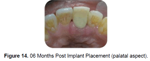 dental-sciences-implant-palata