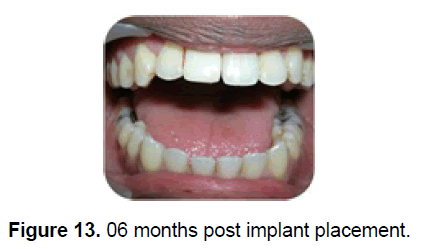dental-sciences-implant-placement