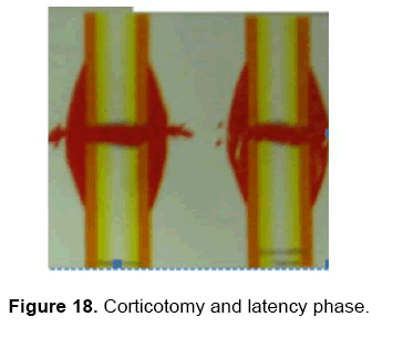 dental-sciences-latency