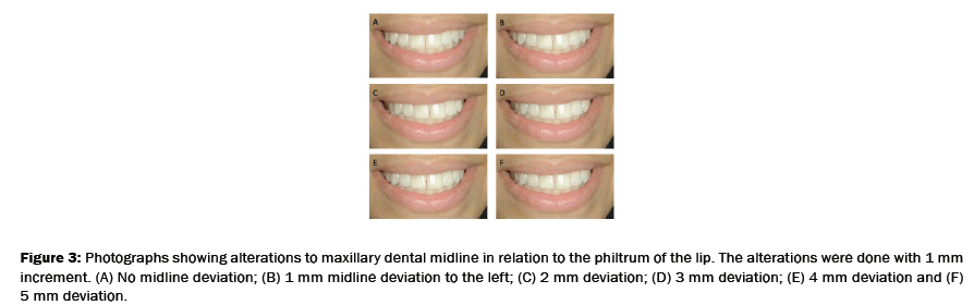 dental-sciences-midline-deviation