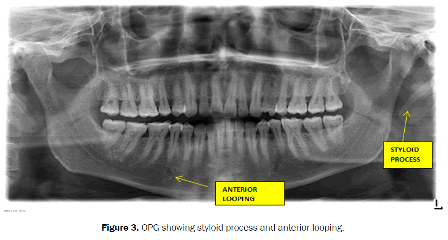 dental-sciences-opg-styloid-process