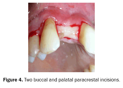 dental-sciences-paracrestal