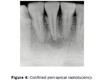 dental-sciences-peri-apical