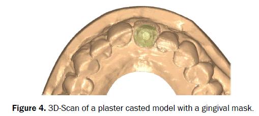 dental-sciences-plaster