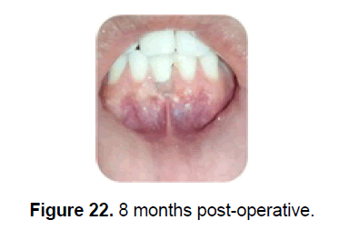 dental-sciences-post-operative