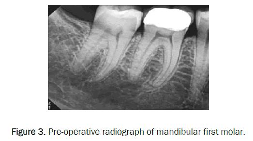 dental-sciences-radiograph-mandibular-first-molar