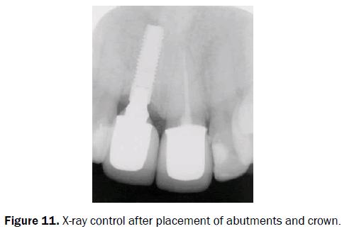 dental-sciences-ray