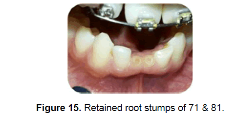 dental-sciences-root-stumps