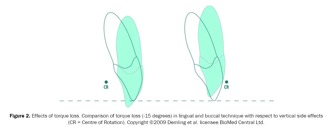 dental-sciences-torque-loss
